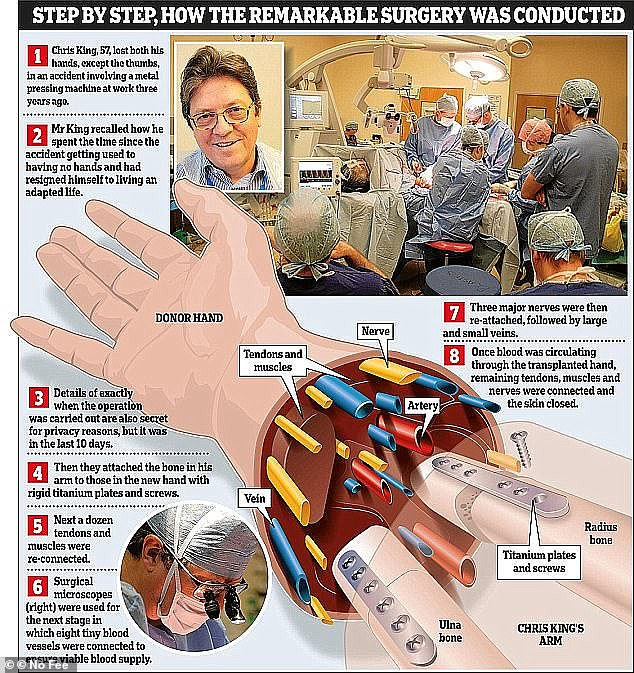 How the tedious operation was done step by step. Mr. King said the operation was a complete success as he already had some moves immediately after the procedure