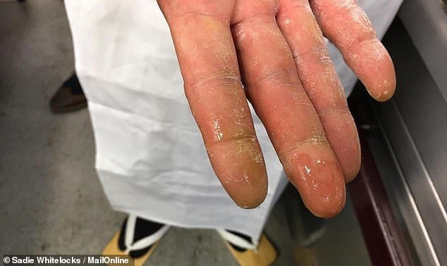 Niitokme reveals his hands that have been pretty much beaten in the kitchen over the years