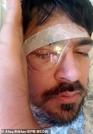 A cover over the injury to Mr Iftikhar's eye