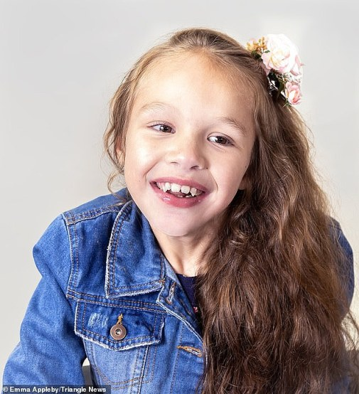 Teagan (pictured before) was given Epidiolex, which contains the cannabis compound cannabidiol but not THC - the psychoactive substance that makes users 'high'. This was enough to control her seizures so they only occur at night and she is seizure-free in the day