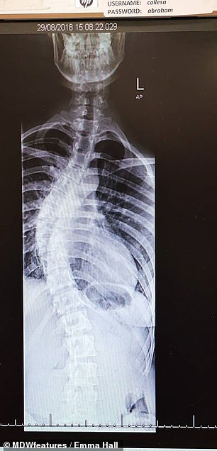 Ms Hall was told she had a 15-degree curve in her spine when she was 13. This reached 60 degrees by the time she had surgery. Left, before, right, after straightening