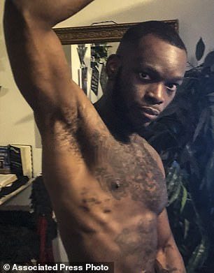 https://i1.wp.com/i.dailymail.co.uk/1s/2019/01/25/18/8977812-6631811-Shamieke_Pugh_pictured_shows_the_injuries_he_suffered_in_2017_wh-m-6_1548442204463.jpg?w=736&ssl=1
