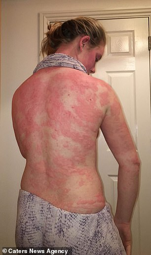 The picture shows the nettle rose that covered her back and arms