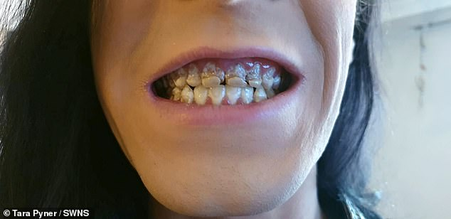 After drinking up to six cans a day for seven months, Mr Pyner began to have tooth pain. He hid his teeth from his mother, until the front four teeth snapped when he bit into an apple