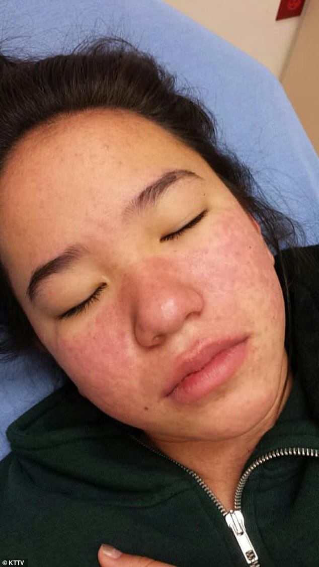 Two weeks later, a red rash did break out on her cheeks (pictured), which was followed by a headaches and a fever. But her father assumed she had the flu