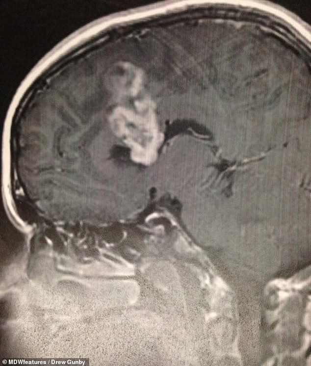 The CT scan identified a mass on Mr Gunby's brain, and alarmed nurses sent him for a subsequent MRI scan which confirmed that the mass was a cancerous tumour