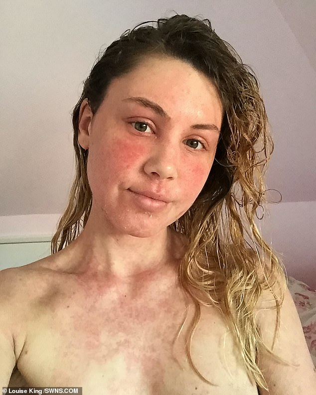 Over time Miss King's skin got worse and it spread to new areas which had never previously been affected - her top lip and all over her back for example