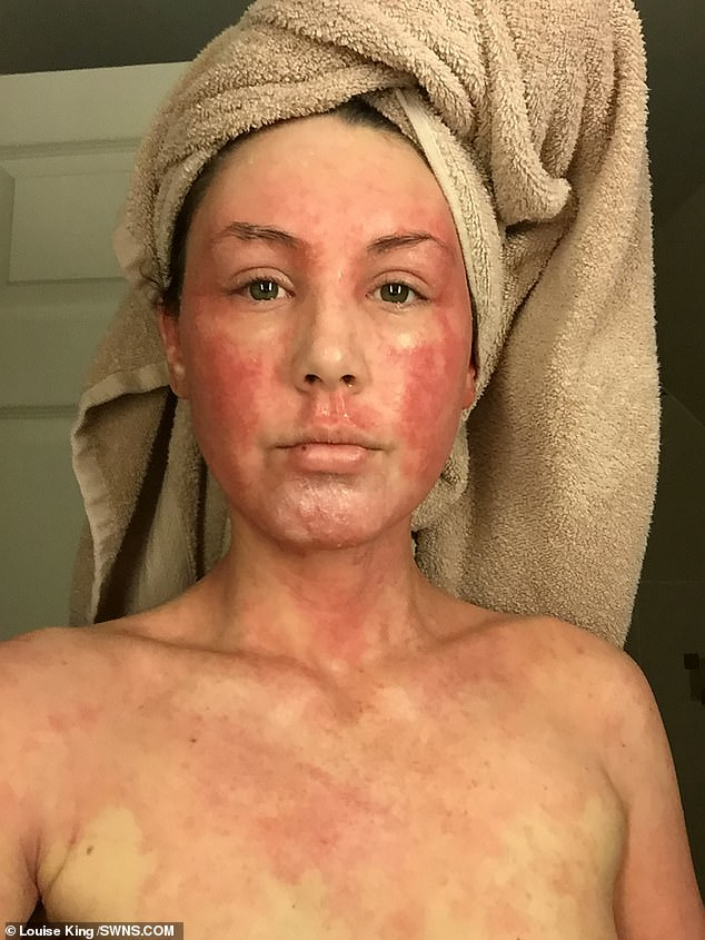 Miss King ditched the treatment after discovering it could be 'addictive' and she feared it was making her skin worse causing more frequent flare ups