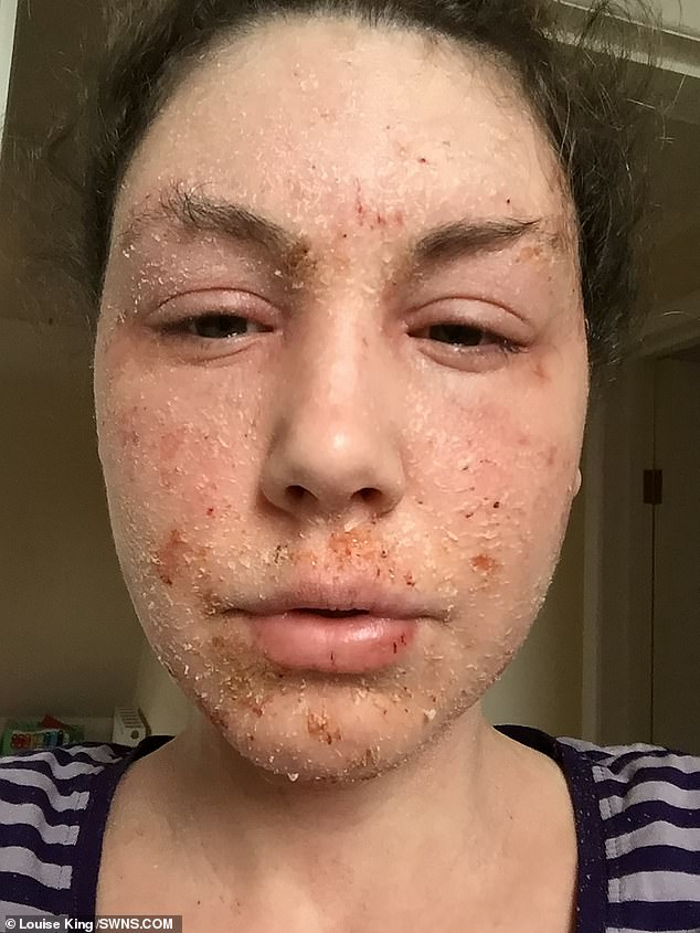 At the beginning on 2019, Miss King's symptoms hit an all-time low. Her skin is swollen, cracked and shedding and she is barely able to close her eyes