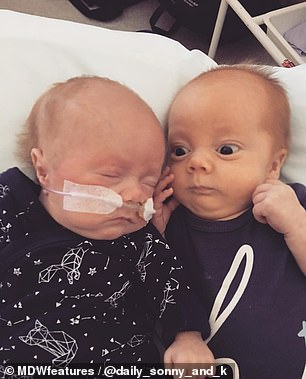Once home, Sonny had to be fed via a tube (left), which caused him to vomit and struggle to gain weight