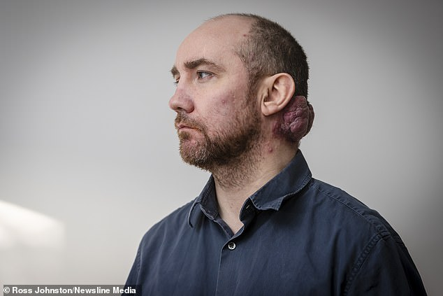 Don Wright, 48, has waited six years for surgery to remove a 'hideous' growth on his neck called a haemangioma, which consists of an abnormally dense group of extra blood vessels