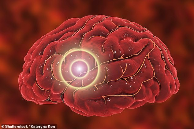 A blood vessel inside the woman's skull ruptured while she was receiving oral sex from her partner – scientists have suggested the blood pressure rise during sex could make it more likely that an existing weak spot on a blood vessel could burst (stock image)