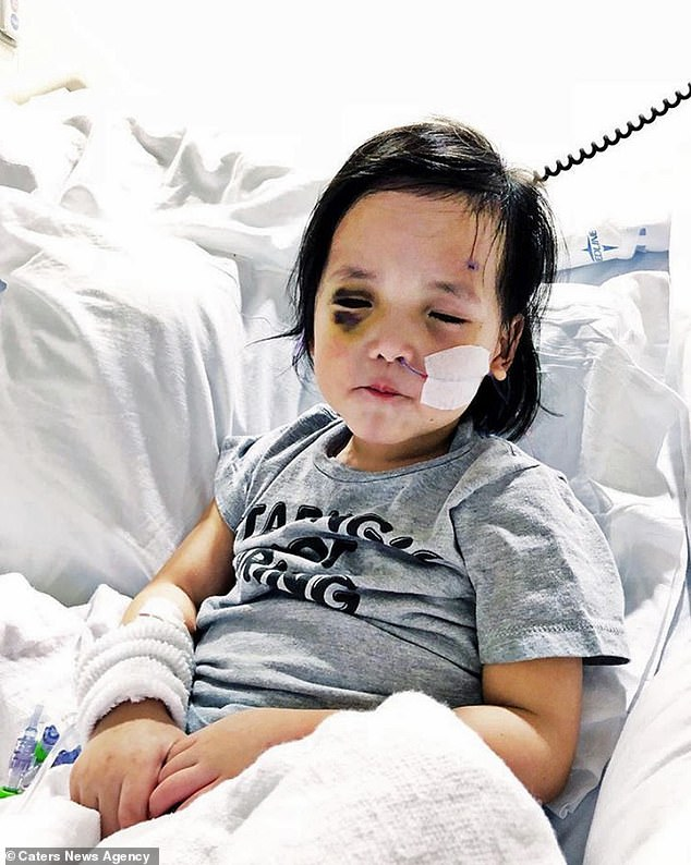Primrose had suffered a build-up of pressure and a retinal detachment in one eye while the other shrank to half its size - forcing surgeons to remove the optic tissue from both