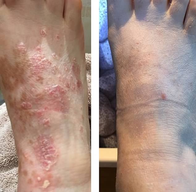 After being offered immune suppressants, Mrs Jones was relieved - and shocked - to see Soratinex cleared her skin within a few months. Pictured, her foot before and after