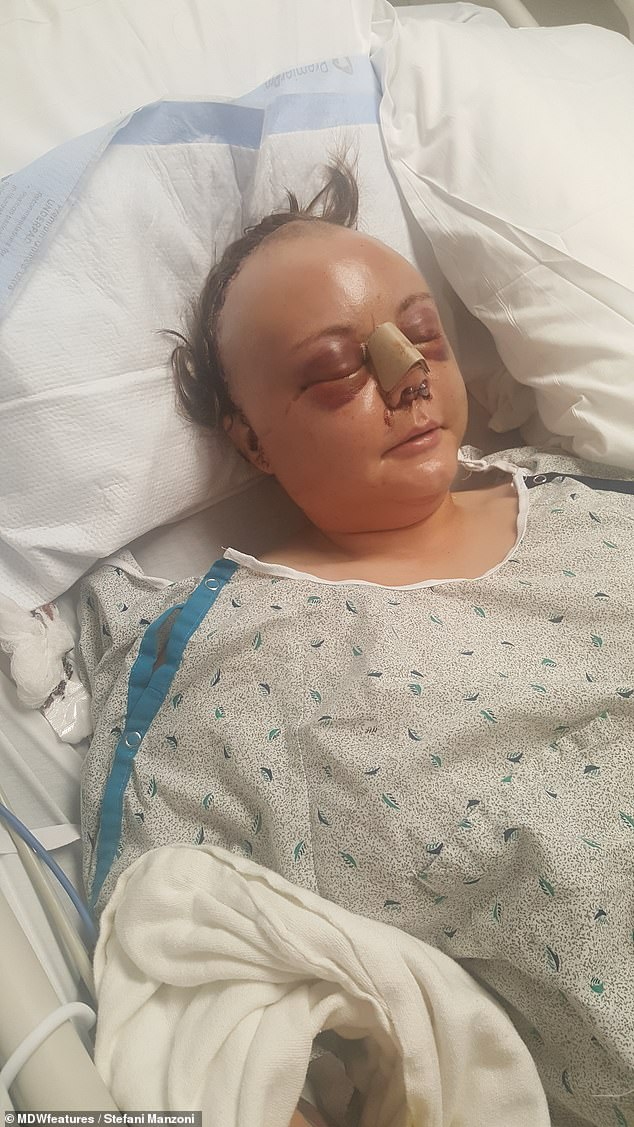 Doctors have yet to find what caused the seizure which triggered her accident in August 2018, and it is unknown what type of seizure she had, or if she had epilepsy (pictured in hospital)
