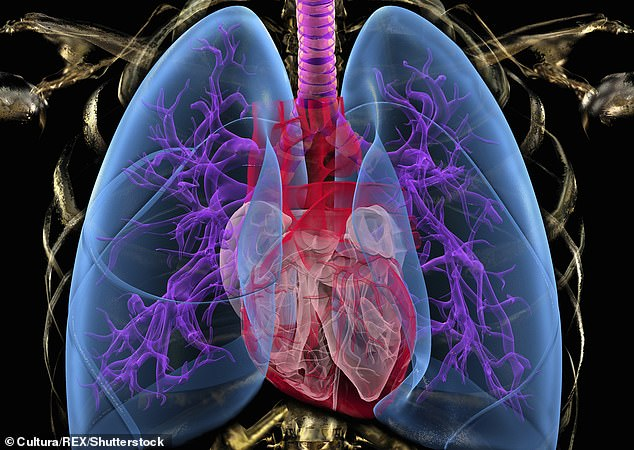 Tuberculosis is a bacterial infection which most commonly infects the lungs and, if left untreated, can cause the tissue to break down and fill up with fluid (stock image)