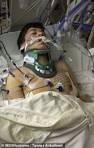 Pictured in the induced coma, MrArbuthnot's family were told to say goodbye, but he shocked everyone with his recovery