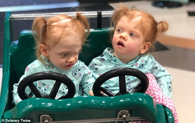 They underwent a risky 11-hour procedure in June 2017 and were among the youngest separations ever recorded. Pictured: Erin, left, and Abby, right