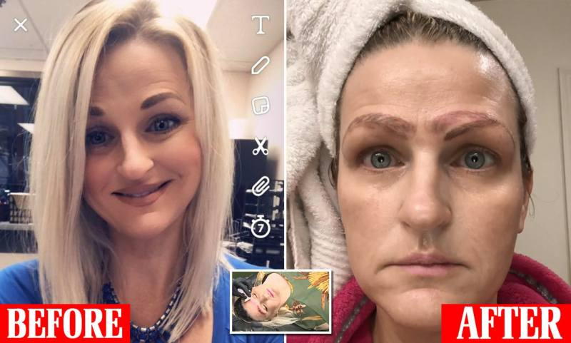 Dumped After Botched Microblading