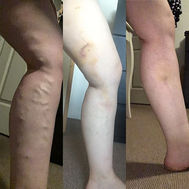 Mrs Hutchinson, 30, from Telford, Shropshire, was unable to walk upstairs due to being in agony. Her veins pictured before (left) and after treatment (centre and right)