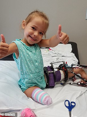 Victoria is pictured after having her right leg amputated, with the fixatorgradually stretching her left limb into shape