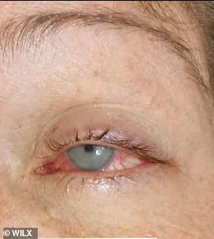 She was finally referred to an ophthalmologist who diagnosed her with acanthamoeba keratitis, a parasitic eye infection that attacks the cornea. Pictured: Lawson's infected eye