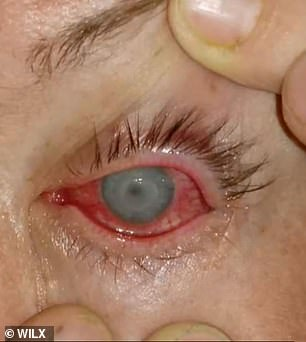 Lawson's left eye became more swollen, painful and sensitive to light (pictured)