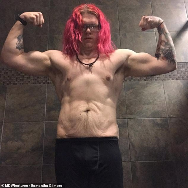 Rick showing his loose skin after dropping205lbs. The photographer and machine operator was motivated to lose the weight when he was 'disgusted' with how he looked in old pictures