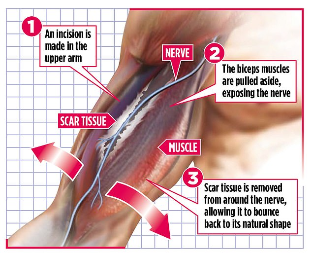 The procedure can banish the crippling, constant pain which sufferers describe as being like lying on broken glass, scorched by a flame or stung by bees