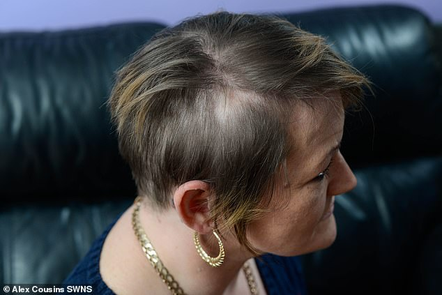 A picture of Suzie's scalp a year after the attack took place in February 2019. She said Kearsley pressed an electric drill to the back of her neck and tried pressing the button. That's how her hair got caught around the rotating masonry drill bit and a large chunk was ripped from her head