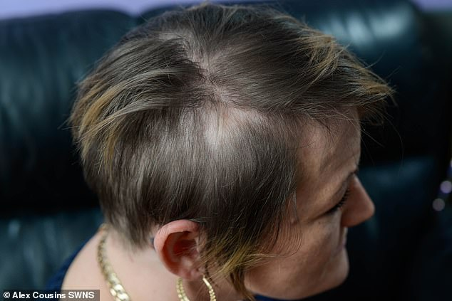Another picture of Suzie's scalp. While some of her hair is growing back, some is still missing and she said her hairdresser has warned her hair follicles might be so damaged, they won't return