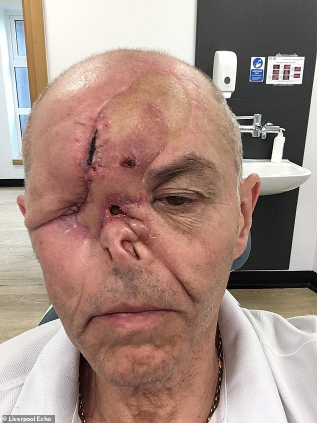 Mr Heward, whose cancer is now incurable, was left with a hole in his face after the surgery to treat the cancerous mass in his nose. Pictured on an unclear date