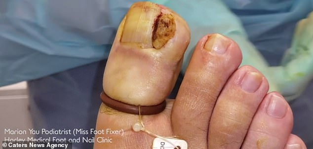 The unnamed patient presented with an 'ingrown toenail with a massive growth on the side'