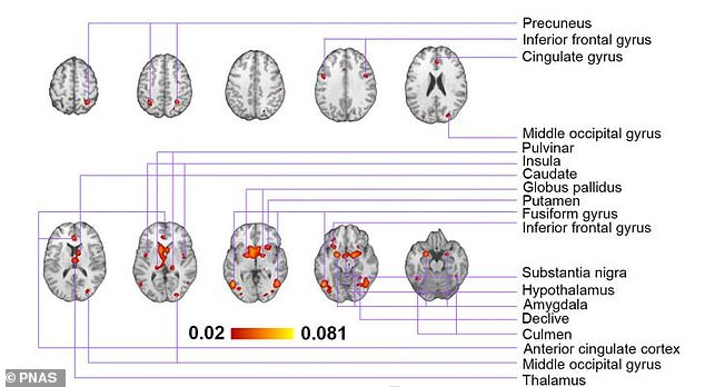 Analysis suggests that exposure to erotic media, in contrast to neutral stimuli such as sport activities or landscapes, induce significant activation in a number of cortical and subcortical structures (pictured)