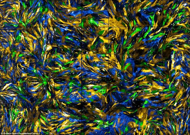 Van Gogh-esque: The overall winner for 2019 is Iona Cuthbertson, a PhD student at the University of Cambridge, who's entry - 'A Sea of Cells' - is a close-up of smooth muscle cells that surround the blood vessels in mice