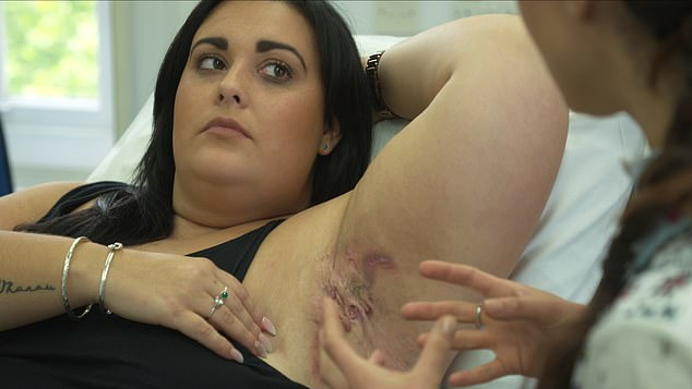 Elise Axon, a 25-year, from Dorset, appears on Discovery show The Bad Skin Clinic next week