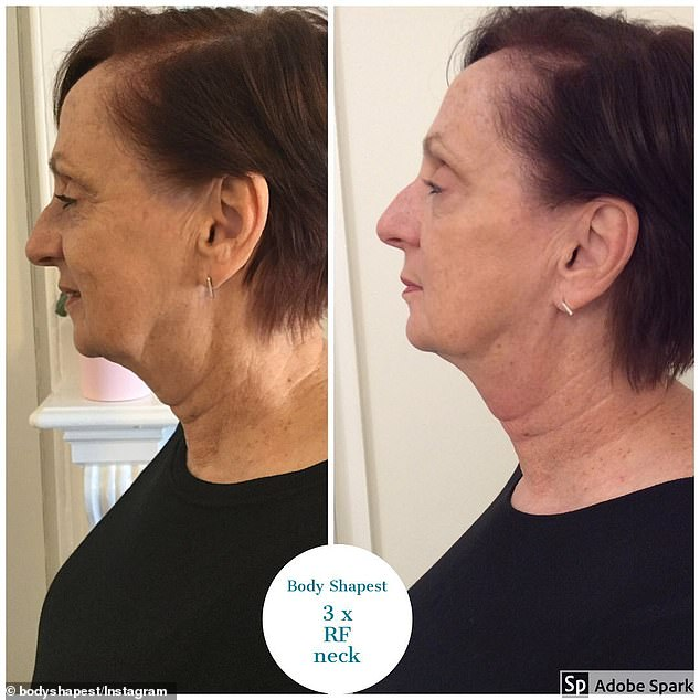 Results: Theradio frequency treatments can also be used to tighten the face and fill in fine lines, making it an alternative to Botox and fillers. (Pictured: One client before and after three treatments on her neck)