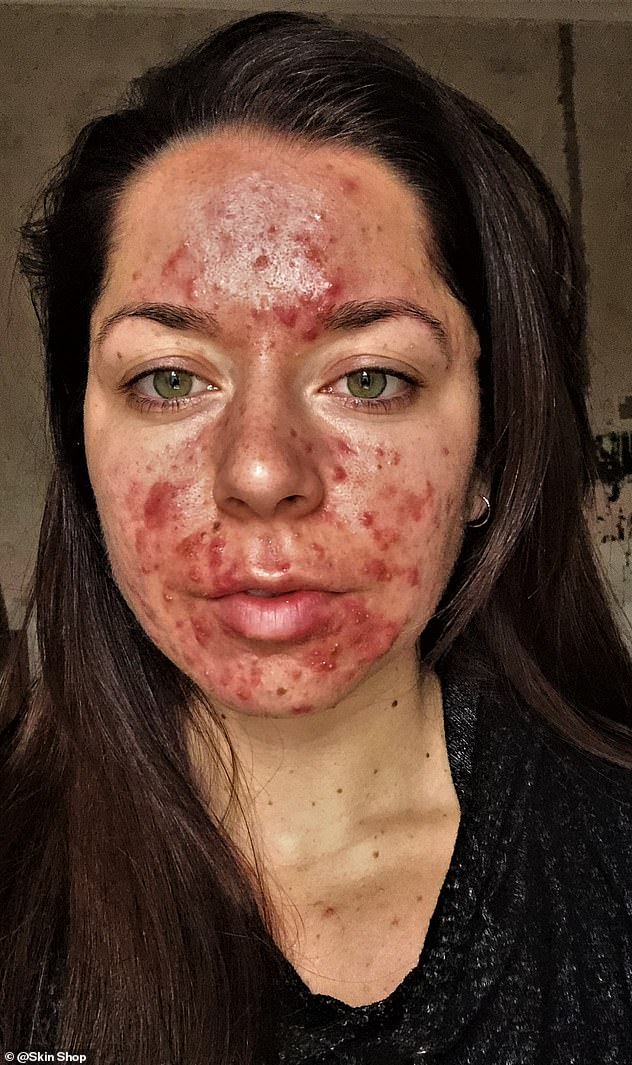 הרופאים אמרו לה שהיא המקרה הכי חמור של אקנה