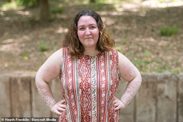 Sabrina Speaks, 23, says that 90% of her body is covered in white and red scaly patches from plaque psoriasis, an immune system condition that also leaves her exhausted and in pain
