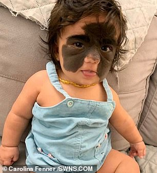 'batman On Birthmark Face Has Born Baby Mask' With Girl