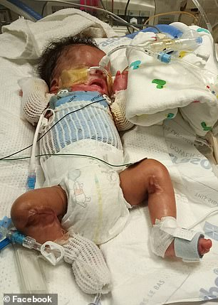 Ja'bari Gray, 10 months, was born in January 2019 in San Antonio, Texas, with almost no skin below his neck (pictured)