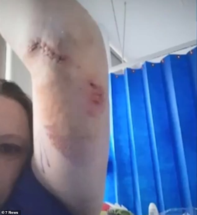 A Melbourne woman has suffered horrific injuries after she was attacked by a German Shepherd she was trying to help