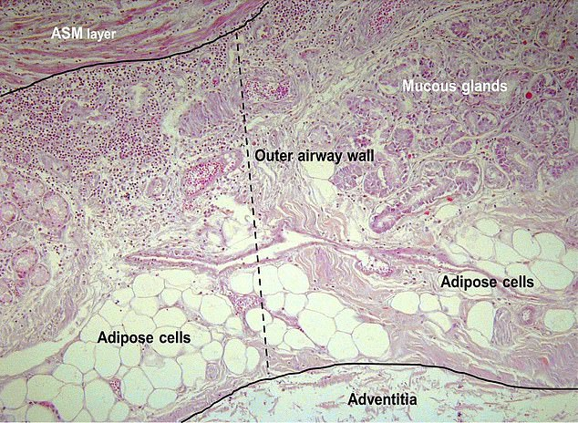Fatty adipose cells are seen to clog up the airway walls of the of the lungs, making the airway thicker and contributing to breathing problems in overweight and obese people