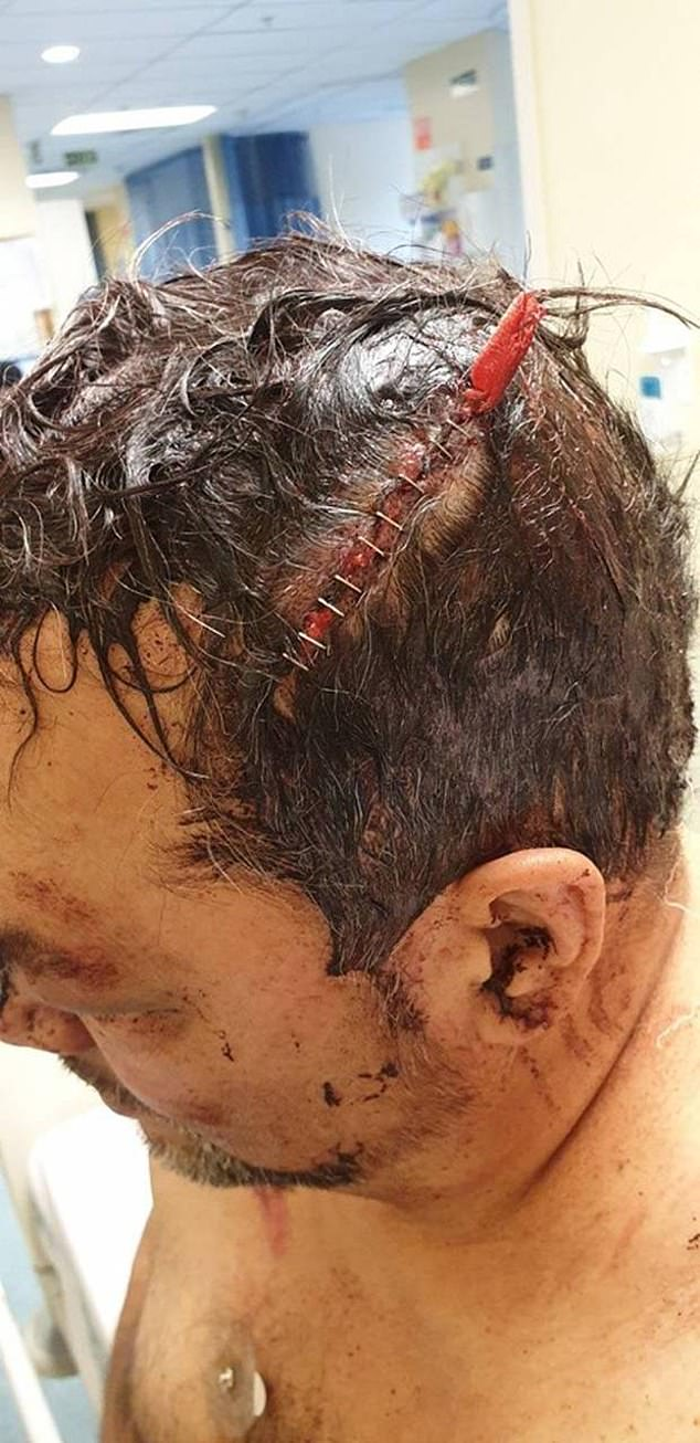 Photos taken at the hospital showed Mr Maynard's mottled head with staples entwined with bloody hair (pictured)