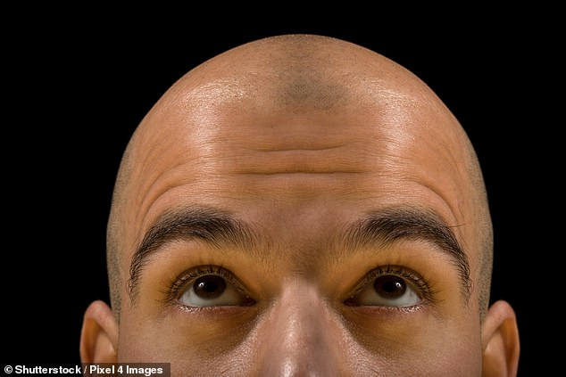 Men will pay £2,500 to freeze a sample of their hair. Key cells will later be cloned in the lab and injected back into their scalps (file image)
