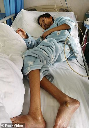 She ate as little as possible, which led her to be malnourished.
