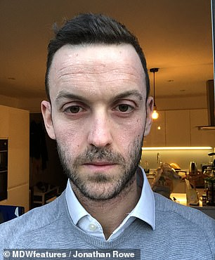 Three and a half months into the no moisture therapy, Mr Rowe saw a noticeable difference in how clear his skin was (pictured)
