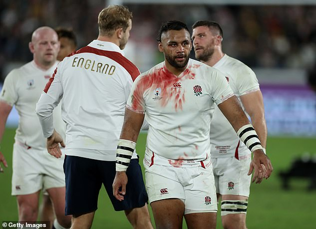 Billy Vunipola walks off the pitch covered in blood as England ponder their missed chance