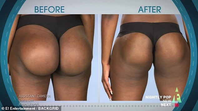 Dr Terry Dubrow and Dr Paul Nassif, on E! TV show Botched, took out Jabrena's giant implants and replaced them with smaller, better shaped ones