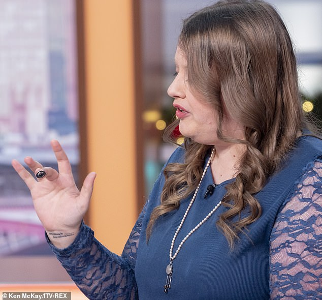 The rest of her bodily changes have not been so practical, including magnets in her fingertips (pictured) which she says can help her detect electromagnetic fields and wires